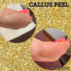 More amazing results from the callus pee