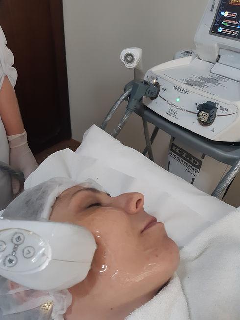 Stetica-RF-Facial.jpg