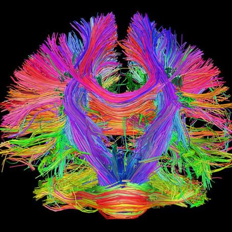 'Rain Man' Benzeri Beyinler MR ve Ağ Analizi Kullanılarak Haritalandı
