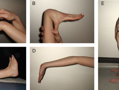 Movement Screen Musings #1 Hypermobility, Feet & Core Strength