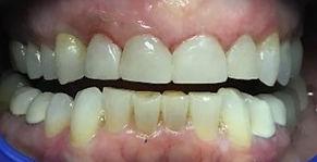 teeth 6_edited.jpg