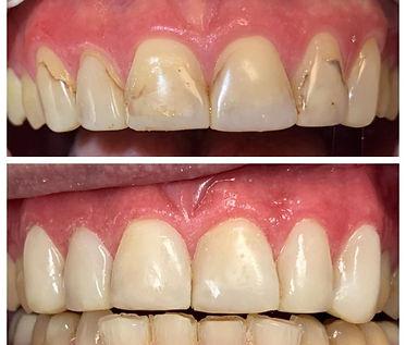 teeth0_edited.jpg