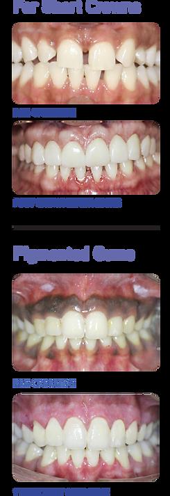 short-crowns.png