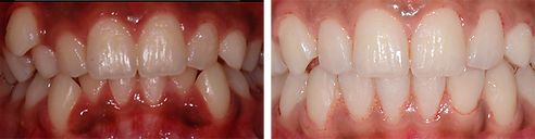 before-after-teeth.png