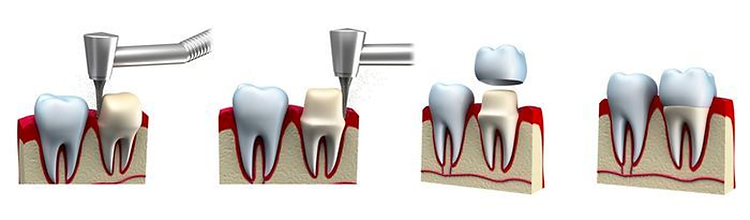 teeths-crwonsscreen.png