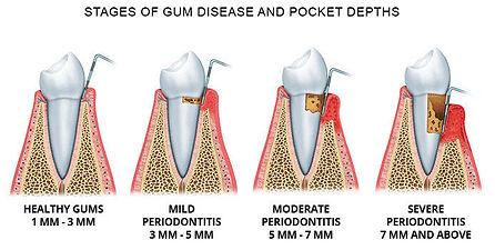 gums-disease.jpg