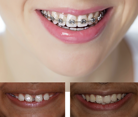 teeth-ortho-left.png