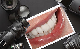 dentalphotography2.jpg