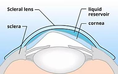 scleral-lens-diagram.webp