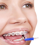 Services-Orthodontics.png