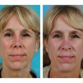 Facial Plastic Surgeon