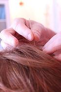 Neuro Acupuncture