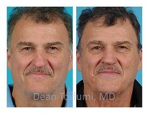 Dr. Dean Toriumi