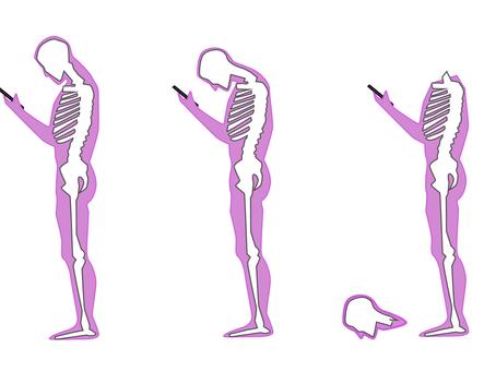 Smartphones™ vs. Smart movements