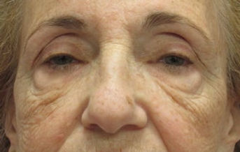 Eyelid-Surgery-before-433555.jpg