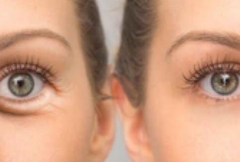 Goed resultaat ooglid correctie blepharoplastiek PCG