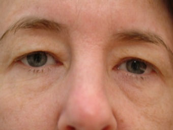 Eyelid-Surgery-before-4681926-2991679_ed