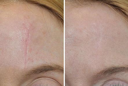 litteken voor en na 2.jpg