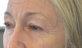 Eyelid-Surgery-before-5001240-3054660_ed