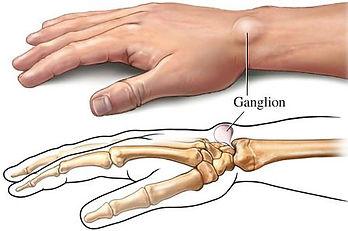 ganglion.jpg