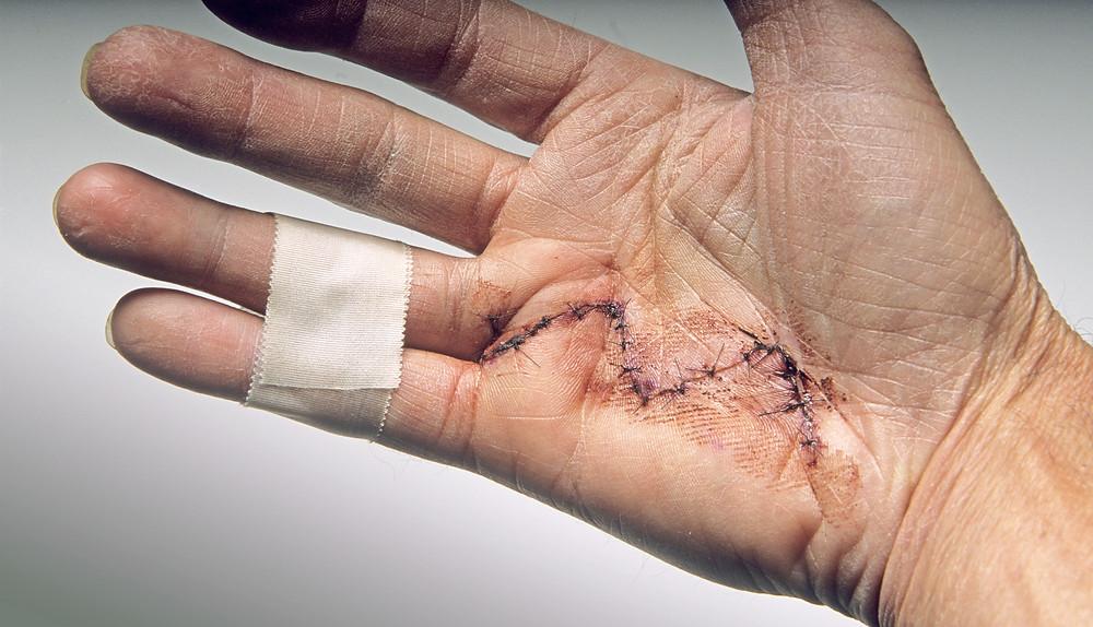 Z-plastiek litteken na Dupuytren handoperatie PCG