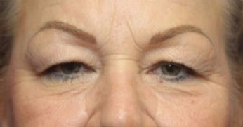 Eyelid-Surgery-before-2345443-2504930_ed
