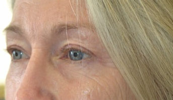 Eyelid-Surgery-after-5001240-3054661_edi