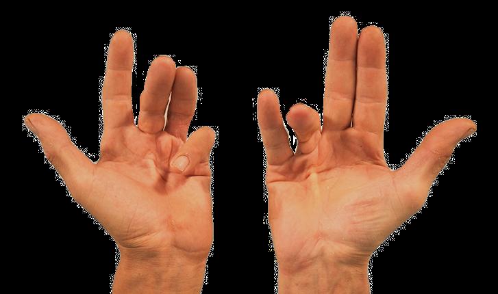 Hoe zien je vingers eruit als je de ziekte van Dupuytren hebt PCG