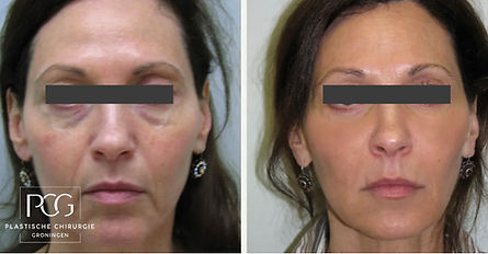 liquid facelift PCG filler.jpg