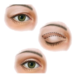blepharoplastiek_edited.png