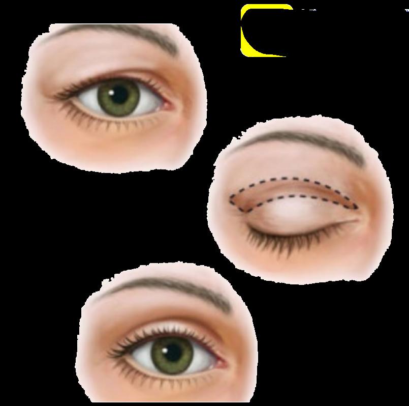 Tekening van bovenste ooglid correctie PCG