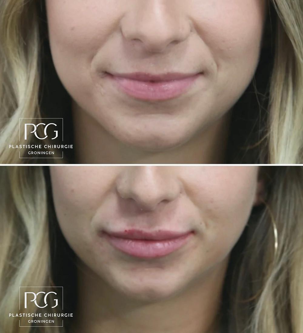Mooie lippen na lip filler PCG