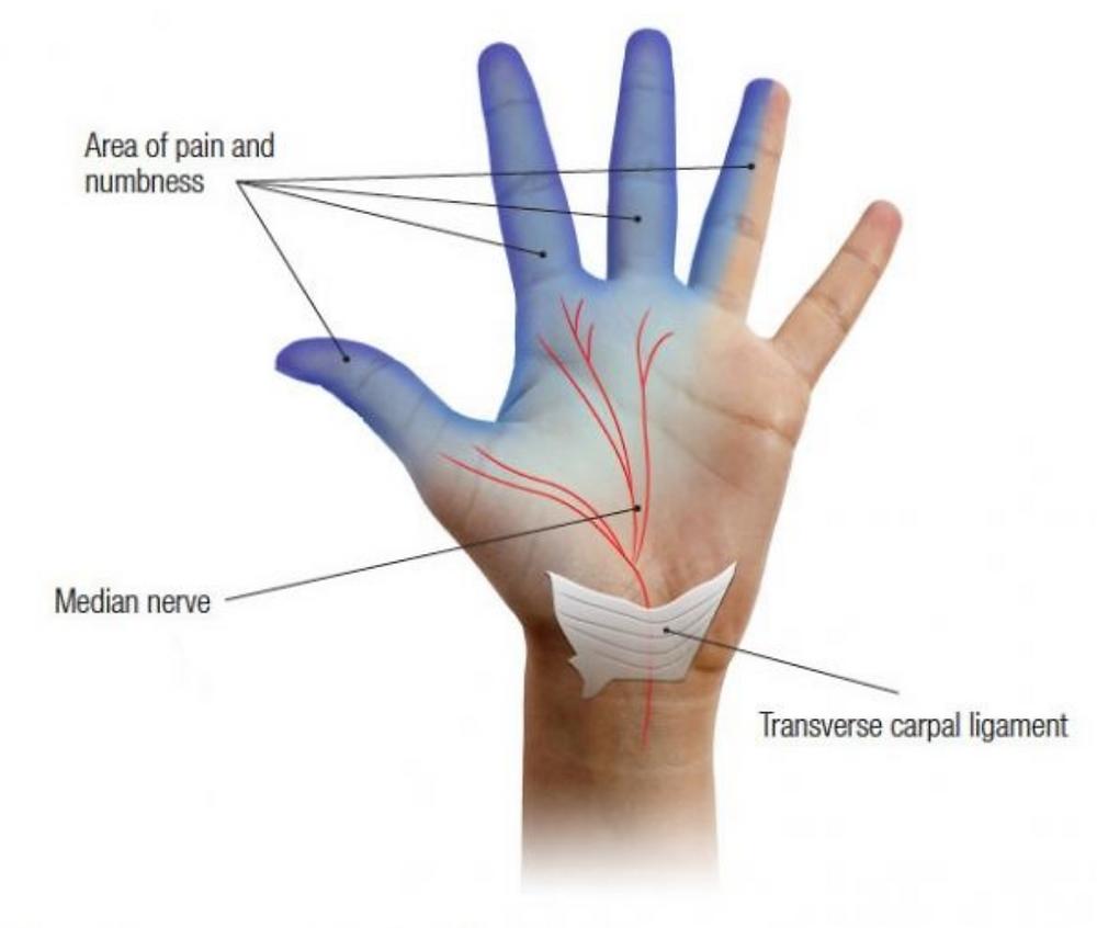 Tekening: Welke vingers geven klachten bij CTS, carpaal tunnel syndroom. Nervus medianus, mediane zenuw