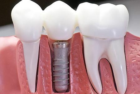 dental-impalnts-huron coast dental.jpg
