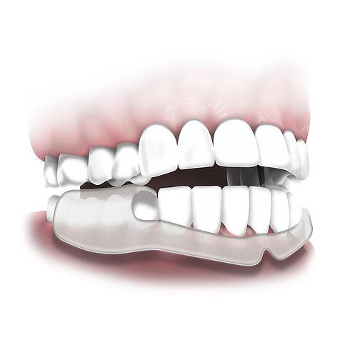 mouth guard at huron coast dental tawas