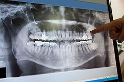 digital-dental-x-rays.jpg
