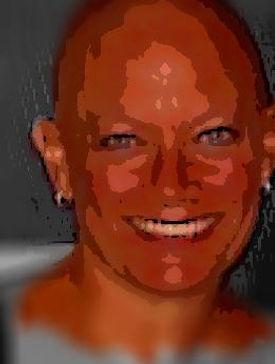 Shawns Bald Pic.jpg