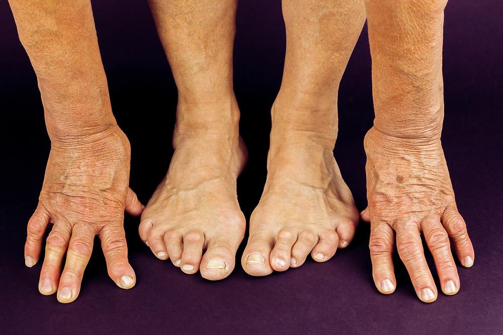Rheumatoid arthritis (RA) causing deformities in both the fingers and toes