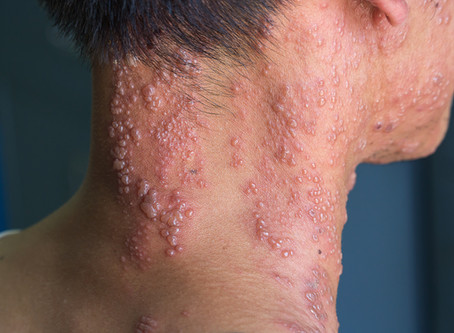 Acupuncture + Chinese herbs = help for shingles rash and pain