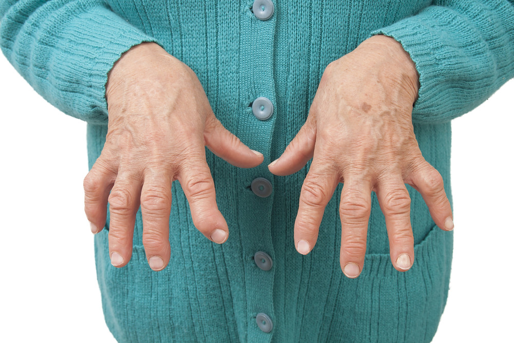 Acupuncture reduces swelling and pain in rheumatoid arthritis