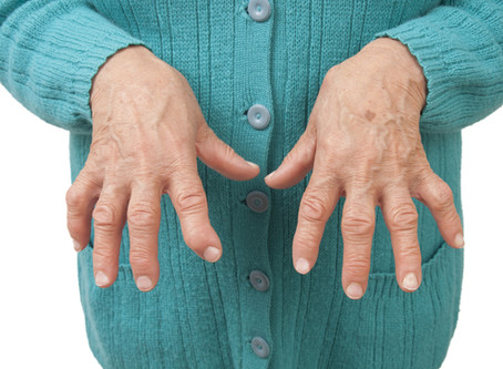 How acupuncture reduces swelling and pain in rheumatoid arthritis