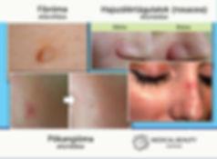 t-away_medical_beauty_centrum.jpg