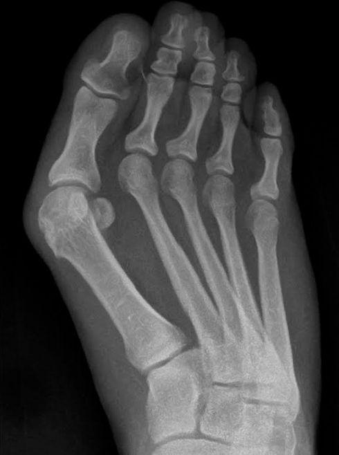 röntgen-hallux-valgus.jpg