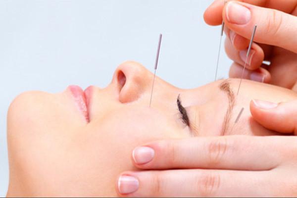Conheça melhor a acupuntura facial e os seus benefícios.