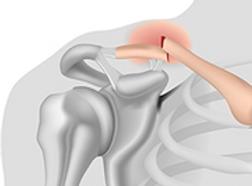 fracture clavicule