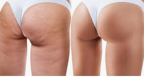 Cellulite   what causes cellulite  under the  Skin?