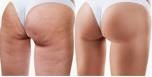 How to to get rid of cellulite from my butt?