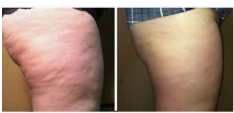 Why Do i have Cellulite on my butt? And