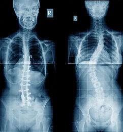 Canva - Scoliosis X-ray image with impla