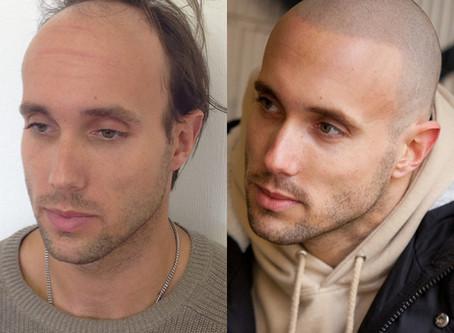 Sprendimas retėjantiems plaukams, praplikimui maskuoti